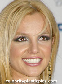 britney_after_rhinoplasty